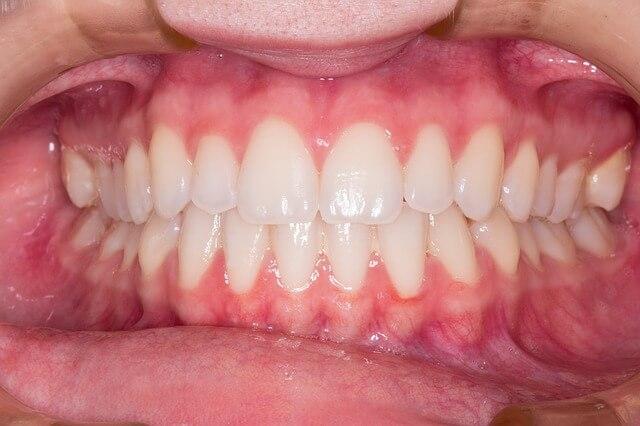 Paradontoza - zapalenie przyzębia (parodontoza)
