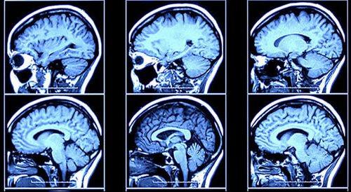 pesquisas-integradas-sobre-a-doenca-de-alzheimer