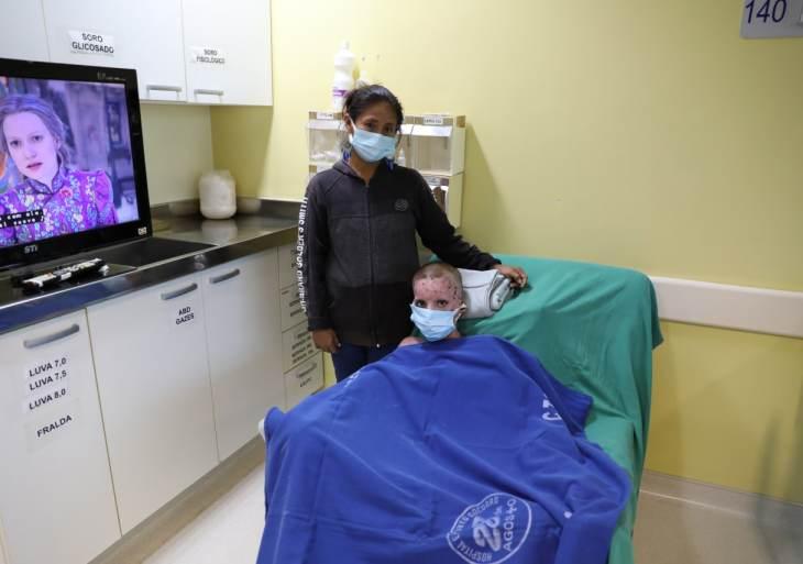 Jovem recebe alta do Centro de Tratamento de Queimados após 98 dias de internação