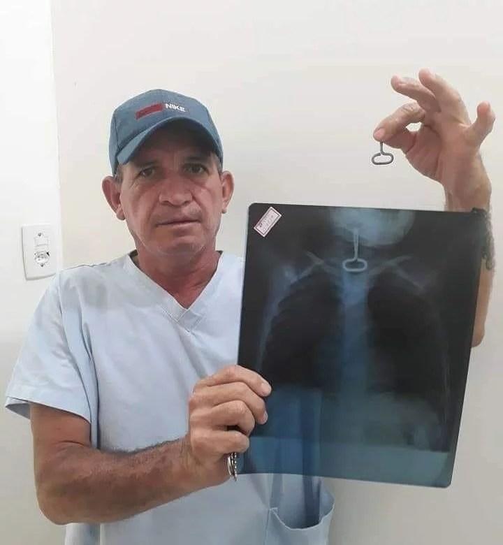 Enfermeiro de Nhamundá salva vida de criança que engoliu chave de abrir lata de conserva