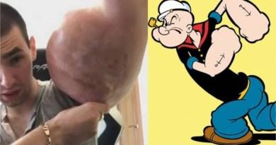 Homem tenta ficar igual ao Popeye e agora poderá perder os braços e até a vida, confira