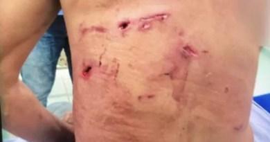 Homem atacado por onça é salvo por 5 cachorros em fazenda