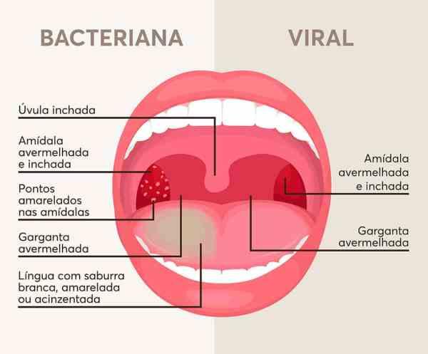 Ilustração de uma boca aberta com sintomas de amidalite bacteriana à esquerda e viral à direita.