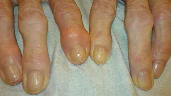 Dedos de mãos com nódulos de Heberden, característica da artrose.