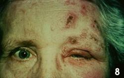 Metade superior do rosto de uma mulher com a parte esquerda apresentando vesículas de herpes-zóster.