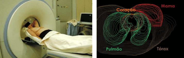 entrevista radioterapia figura 7