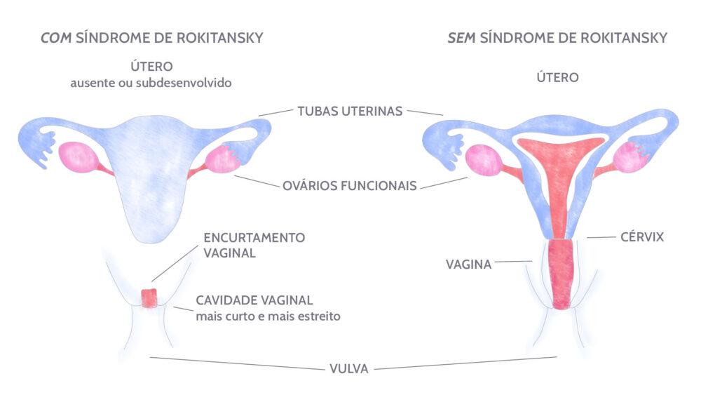 No Brasil, aproximadamente 20 mil mulheres com essa rara alteração genética não menstruam, não podem engravidar e sentem dificuldade durante as relações sexuais.