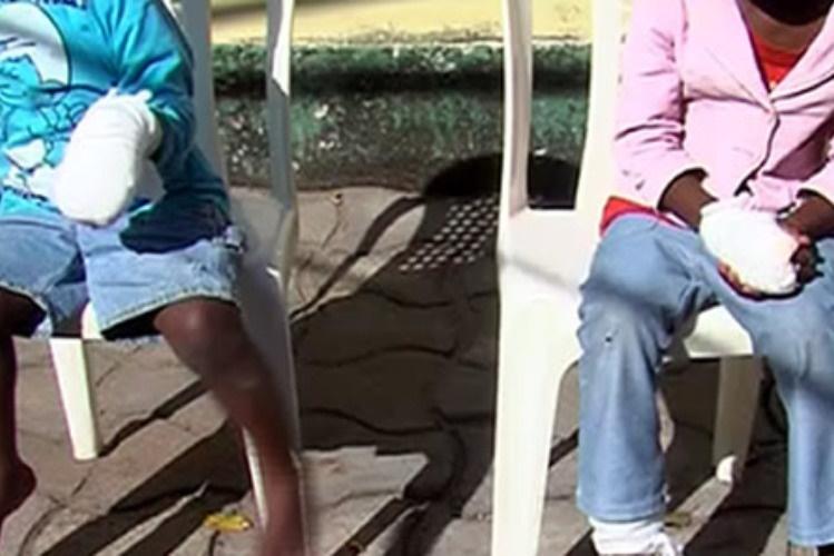 Dois menores, de quatro e seis anos de idade, foram queimados nas mãos pela sua própria mãe, na noite de sábado, depois de terem consumido amendoim torrado