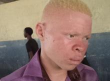 O Governo reiterou o compromisso de fortalecer medidas de combate aos raptos, assassinatos e tráfico de órgãos ou pessoas com albinismo