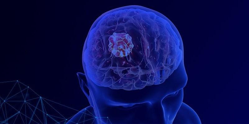 É possível viver bem depois de um tumor cerebral?   ViDA & Ação