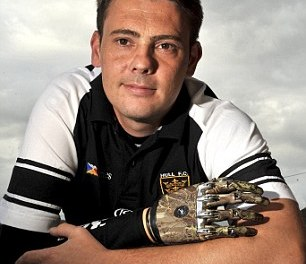 Father who lost arm in train accident at 13 becomes first in UK to be fitted with bionic hand