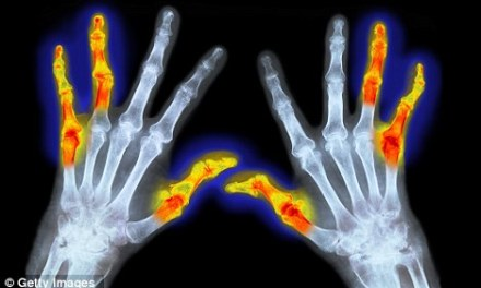 Why lack of sleep may trigger arthritis – but treating insomnia may improve the condition