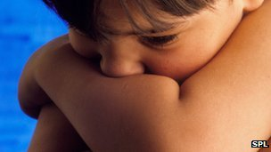 Children 'may grow out of autism'