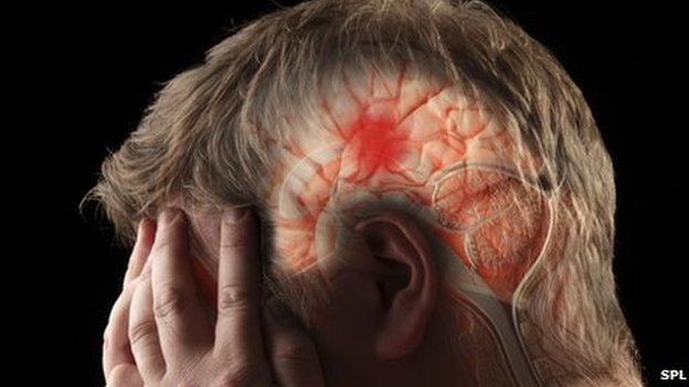 Centralise stroke care 'in super units' call