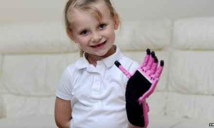 Inverness girl Hayley Fraser gets 3D-printed hand