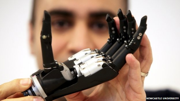 Newcastle University bionic limb project gets £1.4m boost