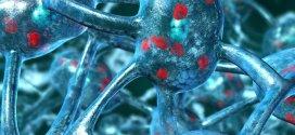 Breath test for Parkinson's disease