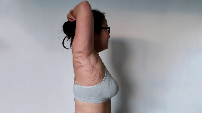 Cushing syndrome stretch marks