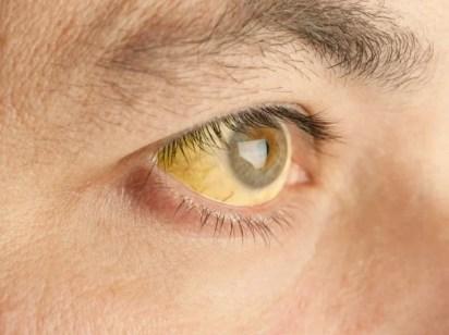 Jaundice: Causes, symptoms, and treatments