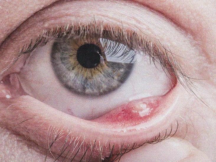 Internal Stye Definition Symptoms