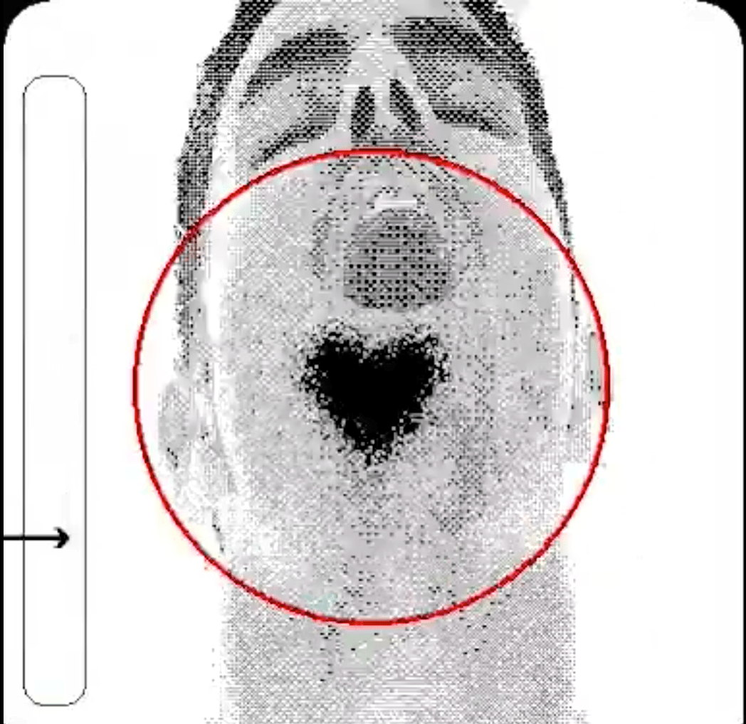 A greyscale image of a mans face is pixilated. The mans facial hair is in the shape of a heart and is circled in red.
