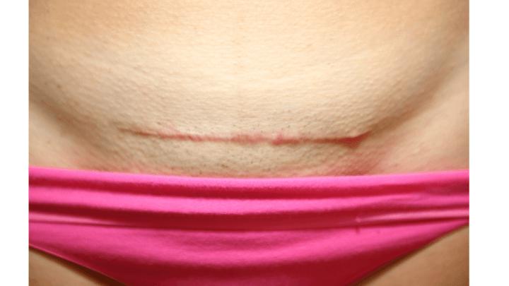 csection scar massage taking care of your cesarean scar