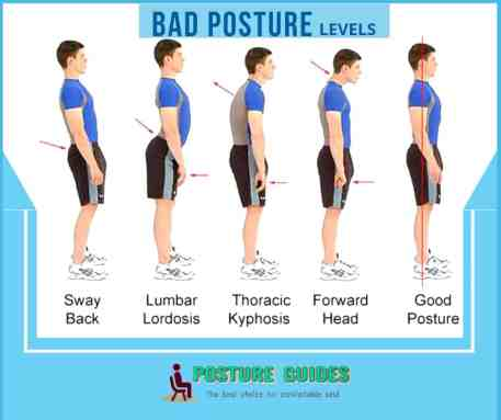Bad posture Level- Posture Guides