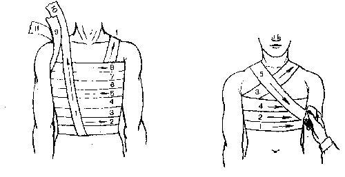 Удар молочной железы (груди): лечение, осложнения