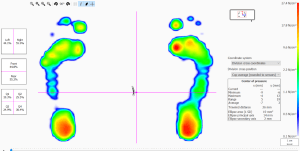 Footscan Balance Analysis
