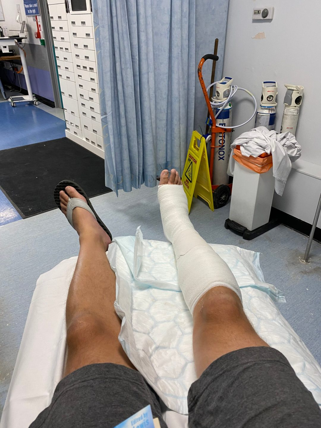 ruptured achilles lower leg cast