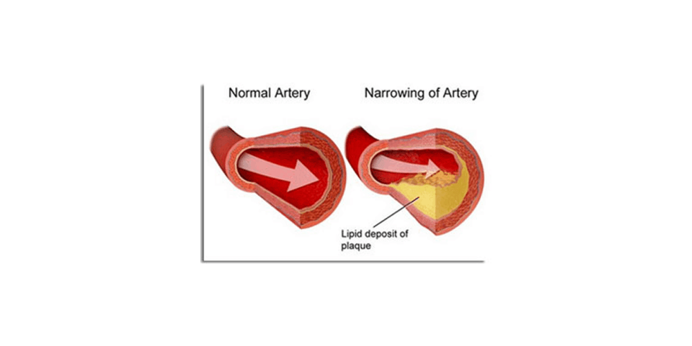 Cardio Clear 7 for heart