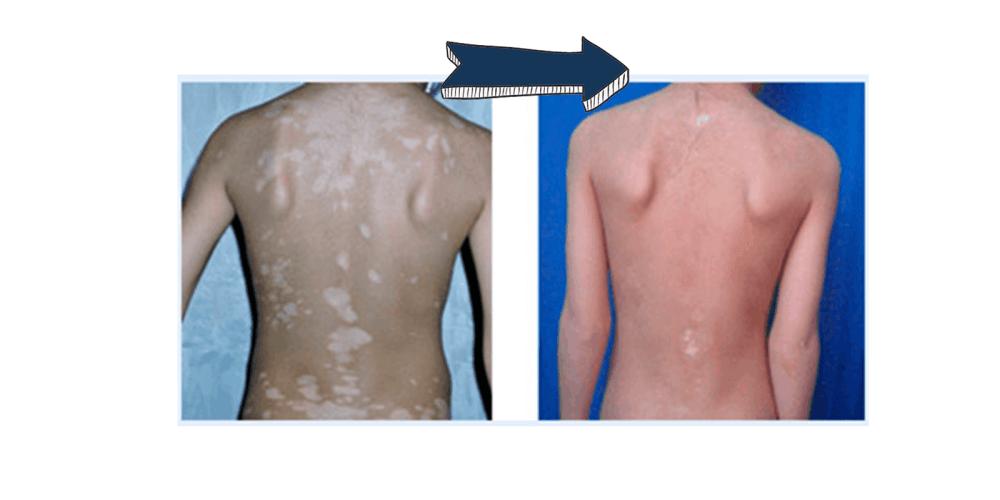 Vitiligo Miracle results