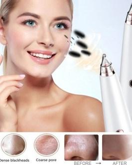 Electric Acne Remover Blackhead Vacuum Point Noir Pore Cleaner