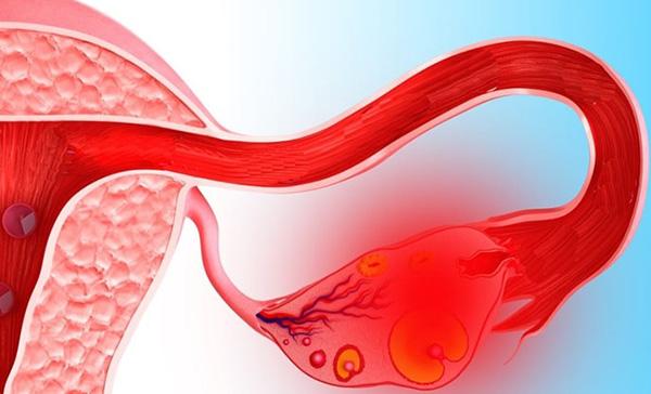 Апоплексия яичника. Неотложная помощь при апоплексии яичника алгоритм