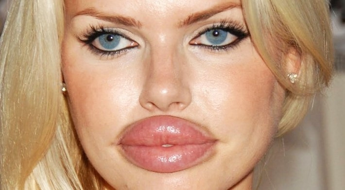 top 10 worst plastic surgery fails of all time