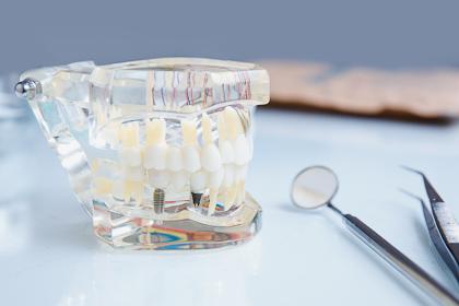 Pradent - implanty