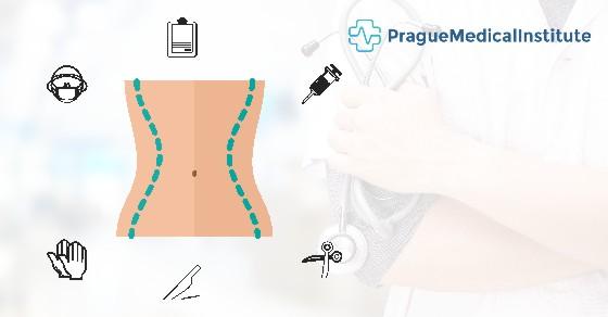 abdominoplasty-surgery