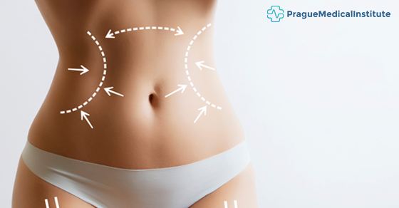 liposuction after weight loss