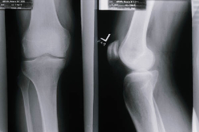 Xray of a knee, not mine