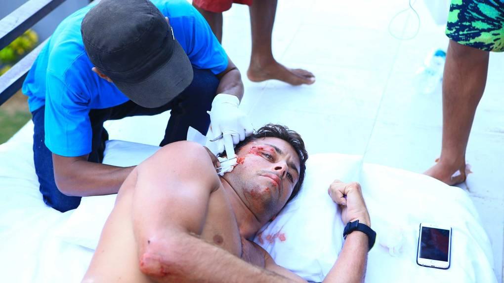 trauma cabeça surf