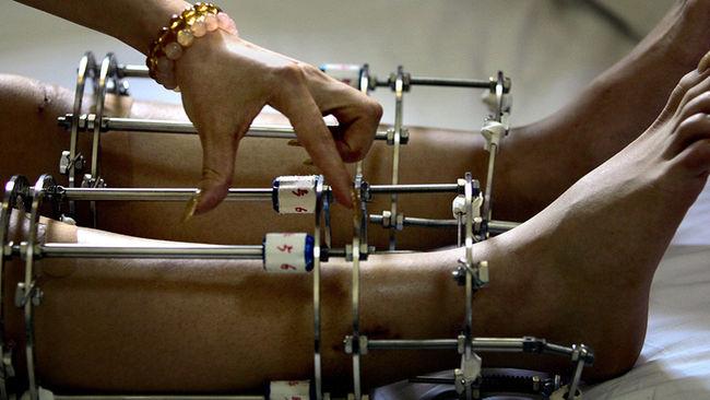 Amar Sarin, doctor de fama internacional por la practica de dicha técnica afirma haber intervenido a 300 pacientes de los que solo un tercio eran locales.