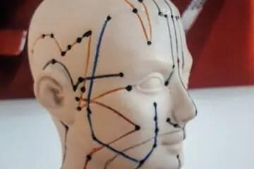 Praxis Hoffmannbeck - Akupunktur