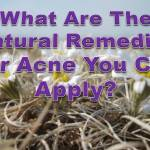 acne_natural remedies