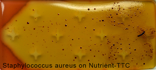 Staphylococcus aureus on Nutrient-TTC