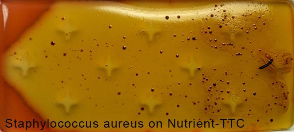 Staphylococcus aureus on Nutrient-TTC