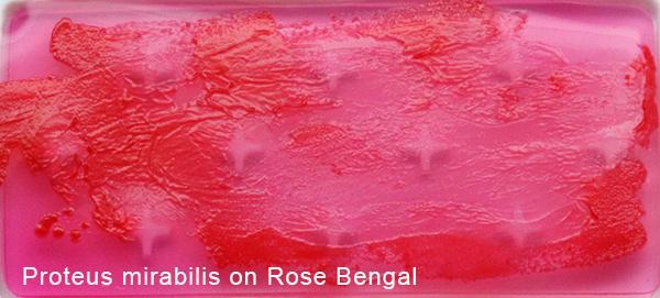 Proteus mirabilis on Rose Bengal