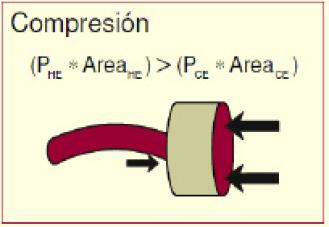 Figura N° 1. Esfuerzos a Compresión en Barra.