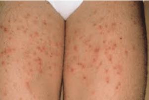 Fungal folliculitis (Vulvar skin disorder)