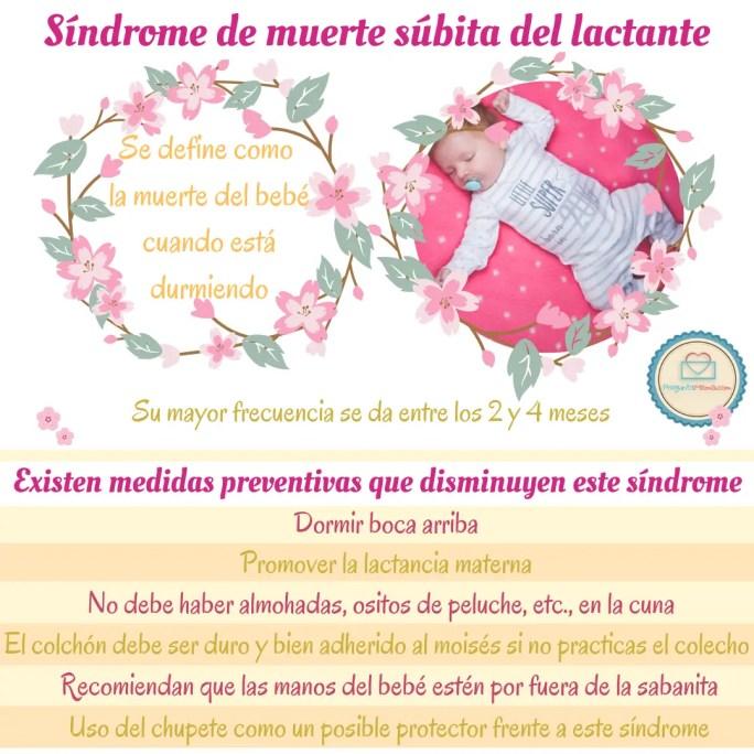 síndrome del bebé