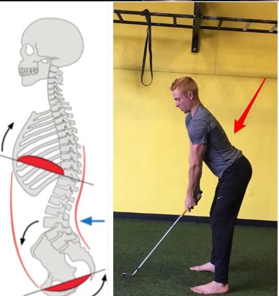 Better Golf Posture